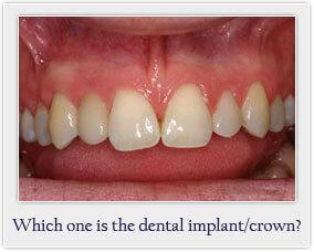implantquiz