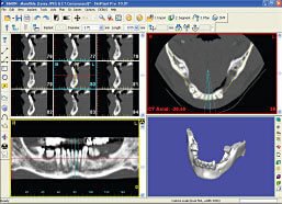 ctscan-for-dental-implants